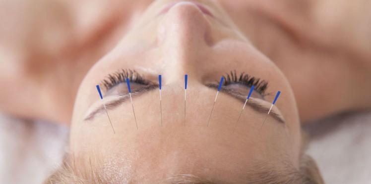 L'acupuncture : une solution efficace pour gérer le stress
