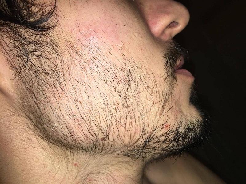 Comment soigner la pilosité faciale ?