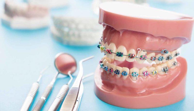 Redresser les dents sans porter de bagues