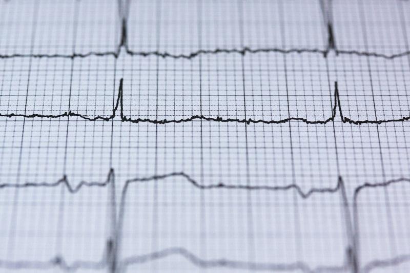 4 symptômes pour reconnaître un malaise cardiaque